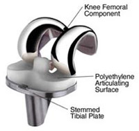 Knee Replacement at KG Hospitals India